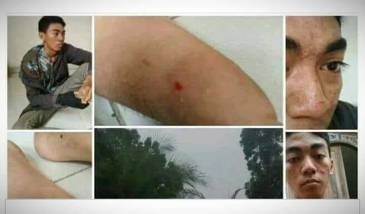 Seorang mahasiswa mendapat luka-luka usai diduga keributan saat PBAK di Kampus UIN Jambi, Senin (20/08/2019)