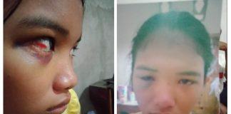 Wajah lebam dan mata memerah didapatkan Betaria di SMA Negeri 7 Sarolangun, Rabu (04/09/2019). Hari ini, Rabu (11/09/2019) Beta melapor ke DP3A Sarolangun.