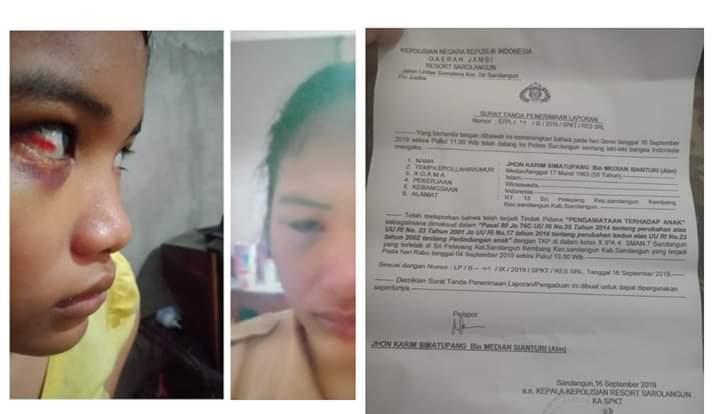 Berlarut-larut kasus penganiayan, ayah Betaria Soneta melaporkan ke polisi pada Senin (16/09/2019). Tampak wajah lebam Beta dan laporan polisi.