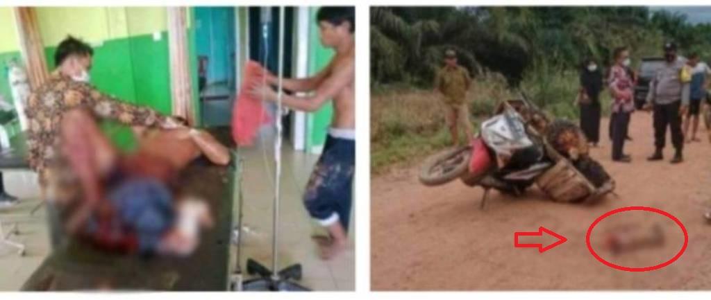 Sebuah unggahan tengah viral di media sosial, pencuri sawit di Bangko, Rokan Hilir Riau di potong kaki setelah di kabarkan curi sawit.